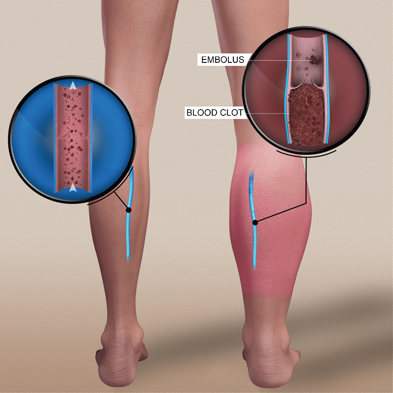 All you have to know about deep venous thrombosis - TROMBO info